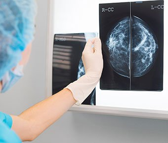Surgeon holds Mammogram film