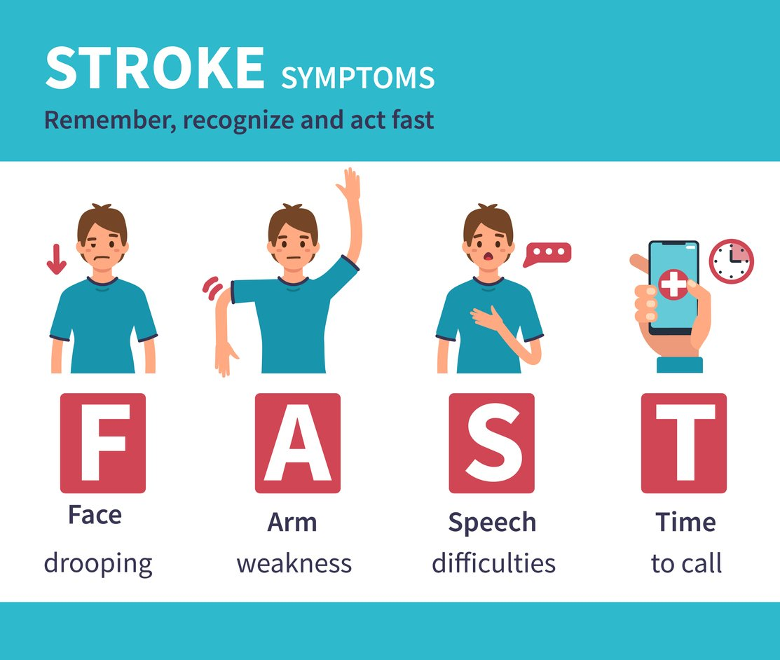 Symptoms of a stoke Act Fast